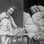 Bệnh Rối Loạn Phân Ly - Hysteria