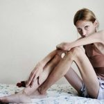 Chứng chán ăn tâm thần - Anorexia Nervosa
