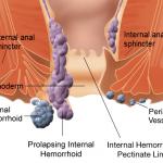 Bệnh trĩ và bác sĩ chữa bệnh Trĩ ở Đà Nẵng